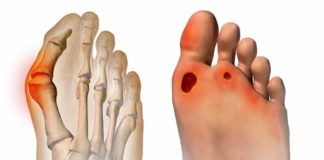 bunions, foot surgery