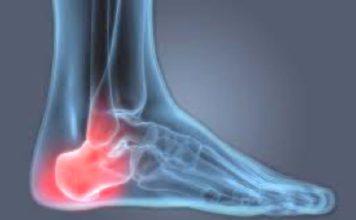 Foot Solutions, Heel